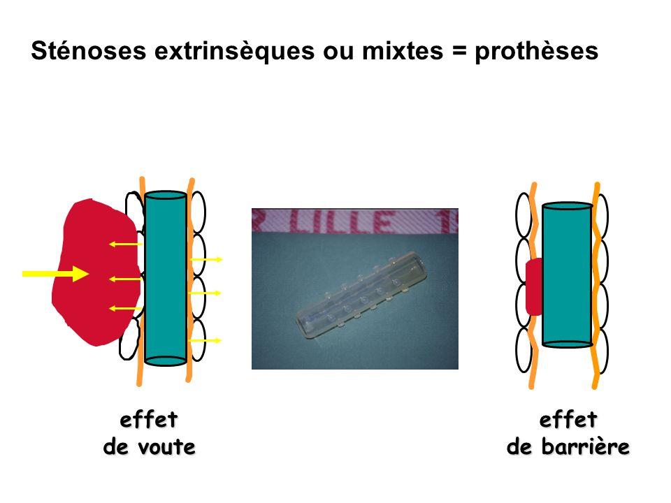 Sténoses extrinsèques ou mixtes = prothèses effet de voute effet de barrière