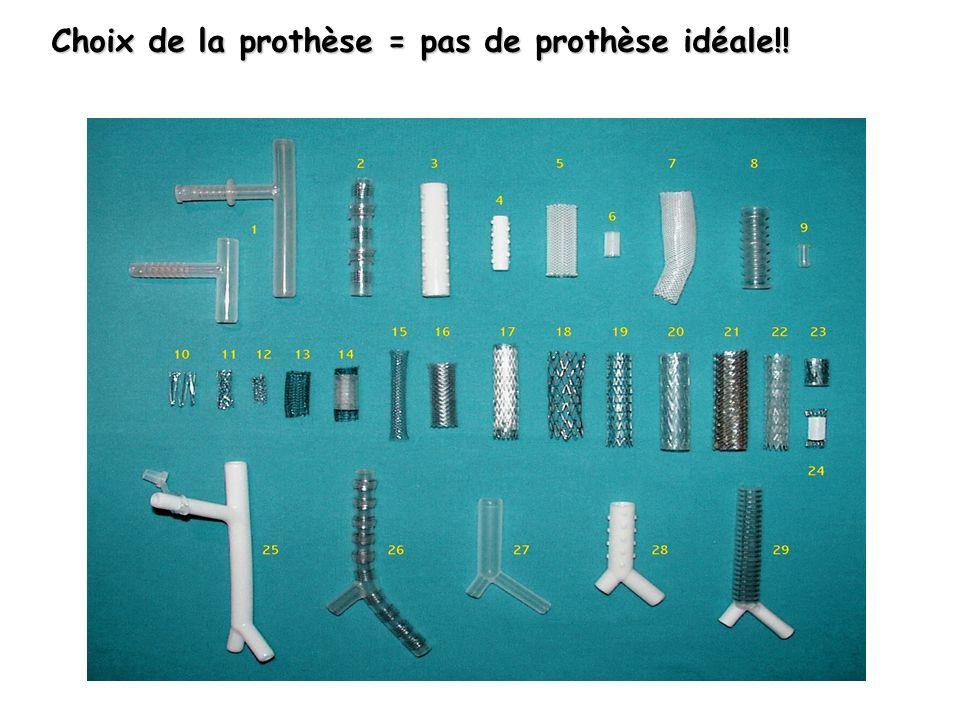 Choix de la prothèse = pas de prothèse idéale!!