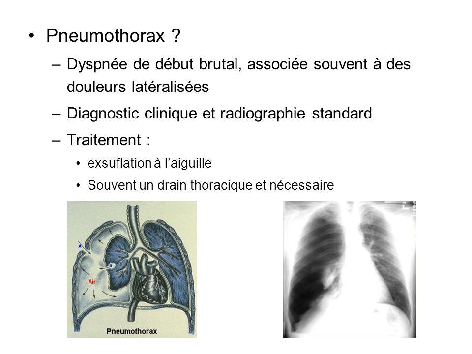 Pneumothorax ? –Dyspnée de début brutal, associée souvent à des douleurs latéralisées –Diagnostic clinique et radiographie standard –Traitement : exsu