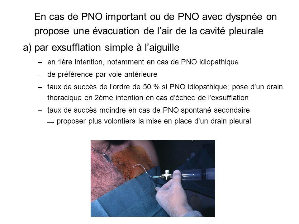 En cas de PNO important ou de PNO avec dyspnée on propose une évacuation de lair de la cavité pleurale a) par exsufflation simple à laiguille –en 1ère