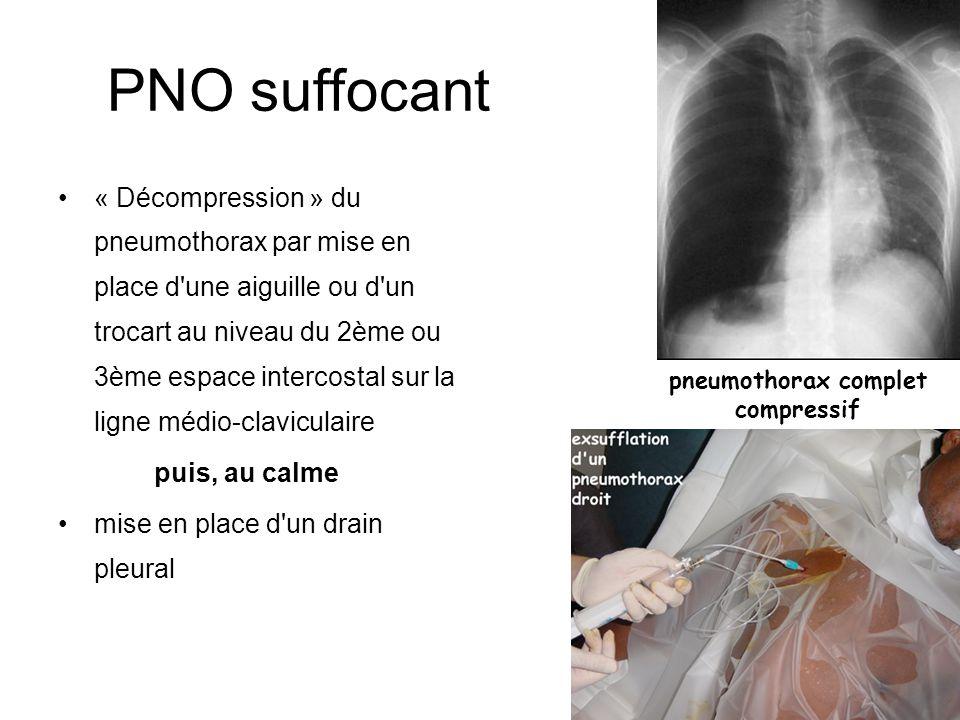 PNO suffocant « Décompression » du pneumothorax par mise en place d'une aiguille ou d'un trocart au niveau du 2ème ou 3ème espace intercostal sur la l