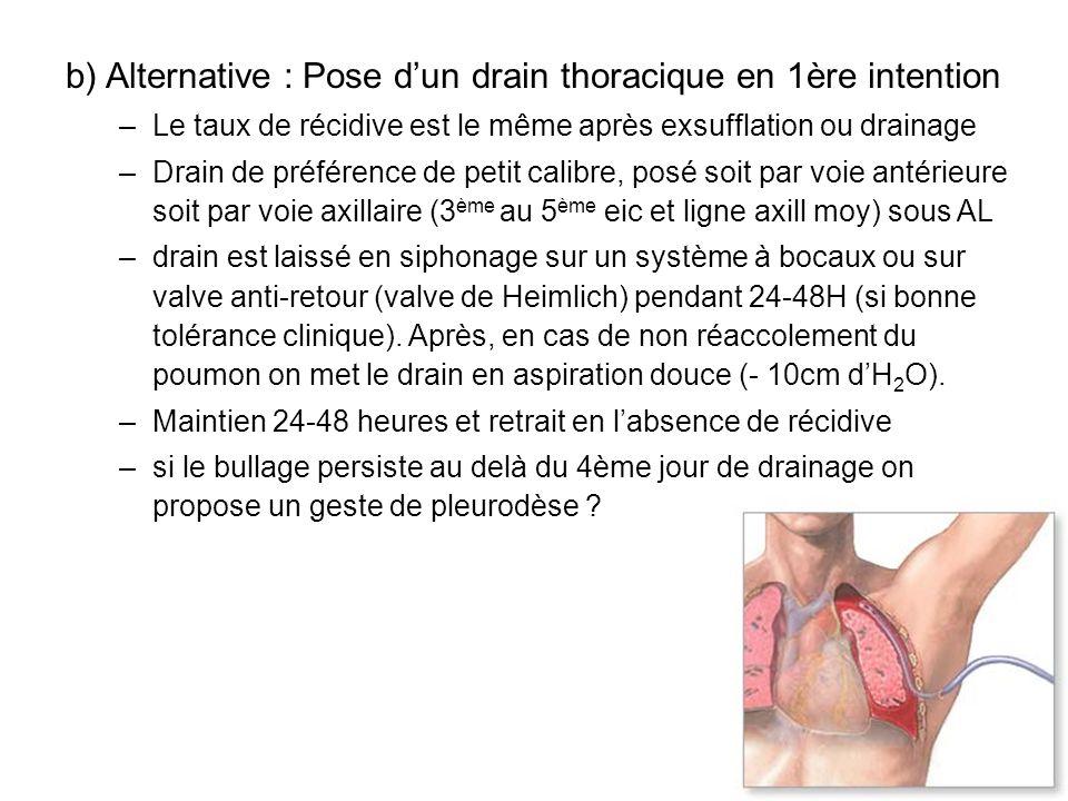 b) Alternative : Pose dun drain thoracique en 1ère intention –Le taux de récidive est le même après exsufflation ou drainage –Drain de préférence de p