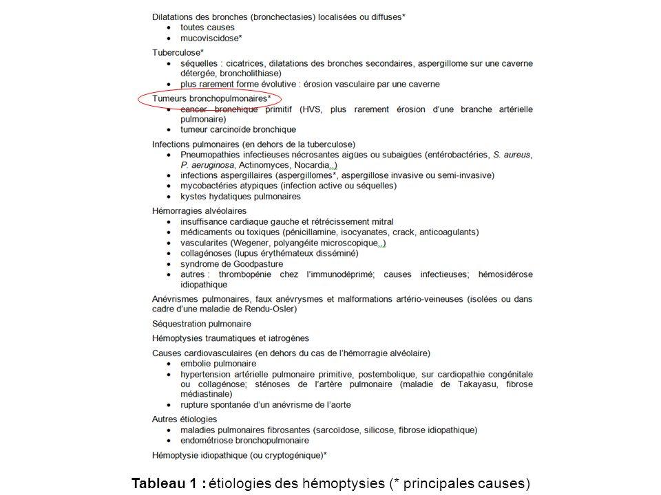 Tableau 1 :étiologies des hémoptysies (* principales causes)