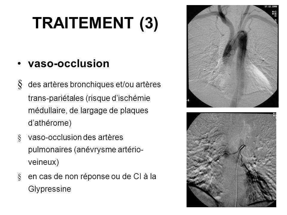 TRAITEMENT (3) vaso-occlusion des artères bronchiques et/ou artères trans-pariétales (risque dischémie médullaire, de largage de plaques dathérome) va