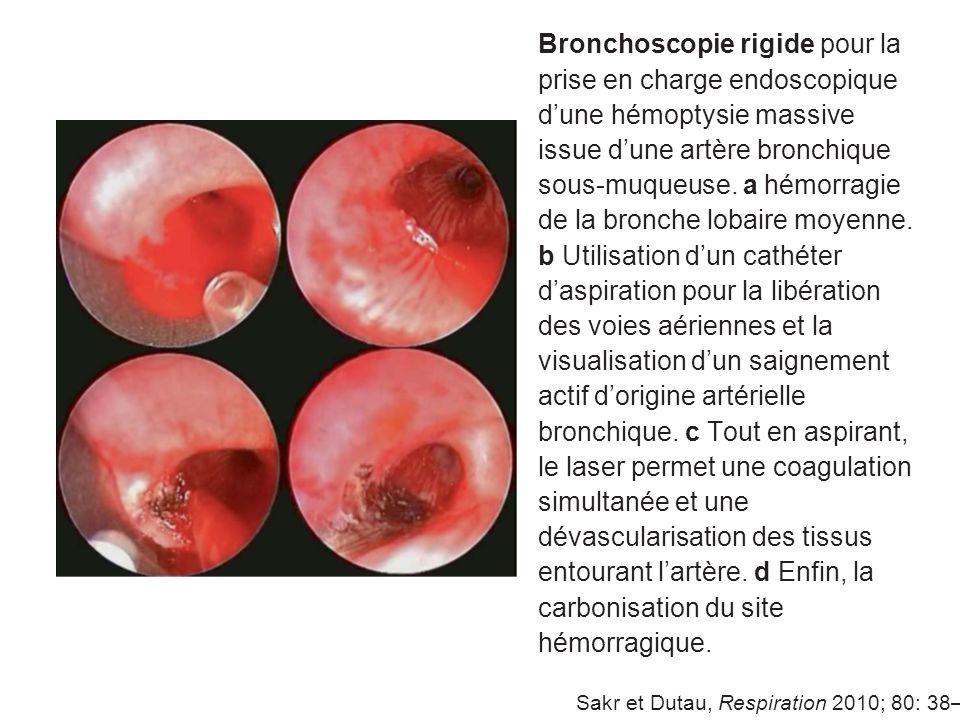 Bronchoscopie rigide pour la prise en charge endoscopique dune hémoptysie massive issue dune artère bronchique sous-muqueuse. a hémorragie de la bronc