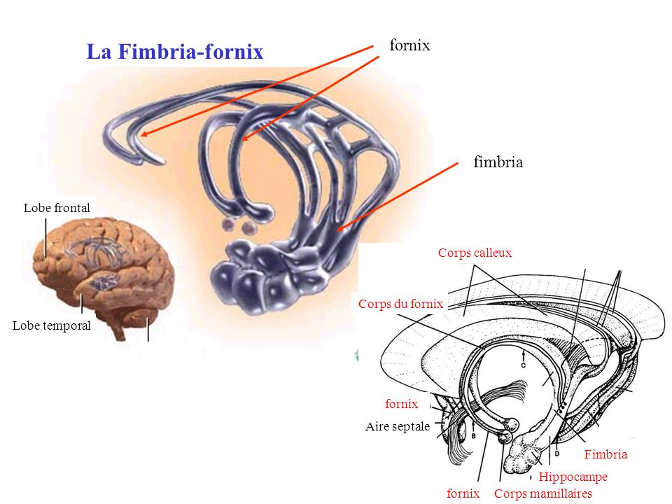 La Fimbria-fornix Lobe frontal Lobe temporal Corps calleux Corps du fornix Corps mamillaires Hippocampe fornix Fimbria Aire septale fornix fimbria for