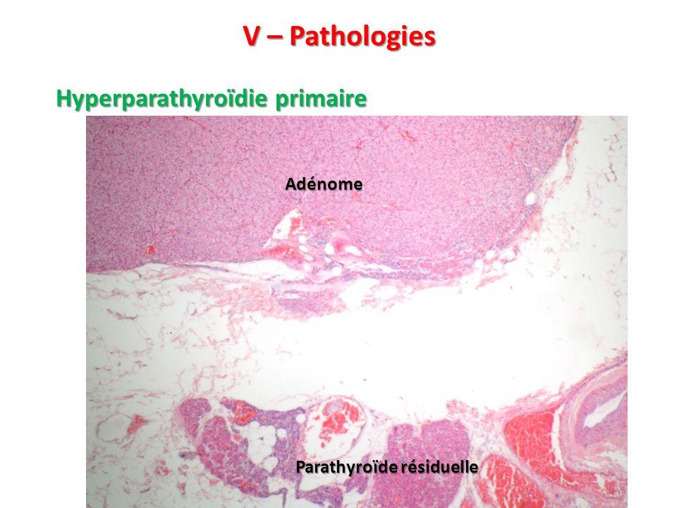 V – Pathologies Hyperparathyroïdie primaire Parathyroïde résiduelle Adénome