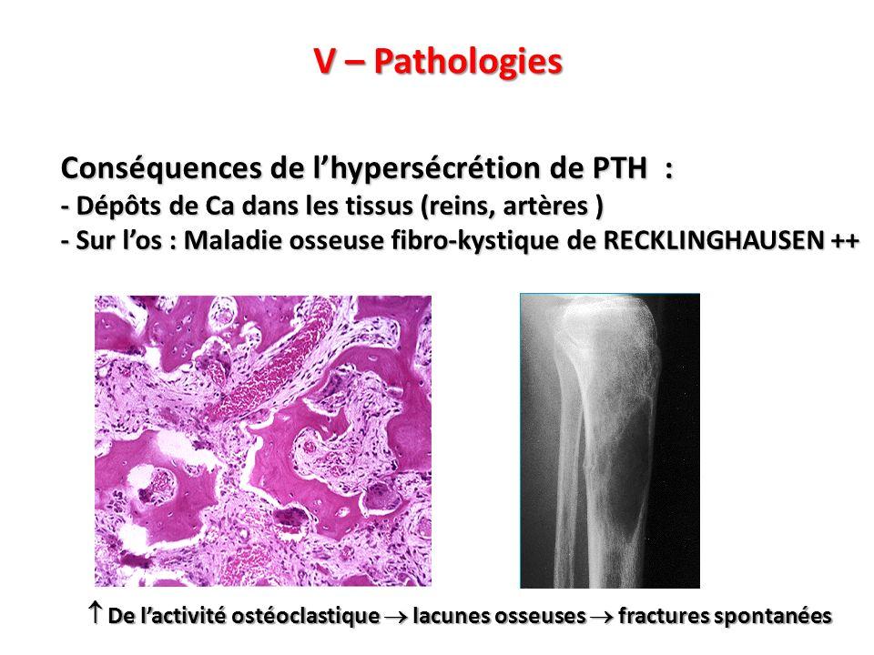 V – Pathologies Conséquences de lhypersécrétion de PTH : - Dépôts de Ca dans les tissus (reins, artères ) - Sur los : Maladie osseuse fibro-kystique de RECKLINGHAUSEN ++ De lactivité ostéoclastique lacunes osseuses fractures spontanées De lactivité ostéoclastique lacunes osseuses fractures spontanées
