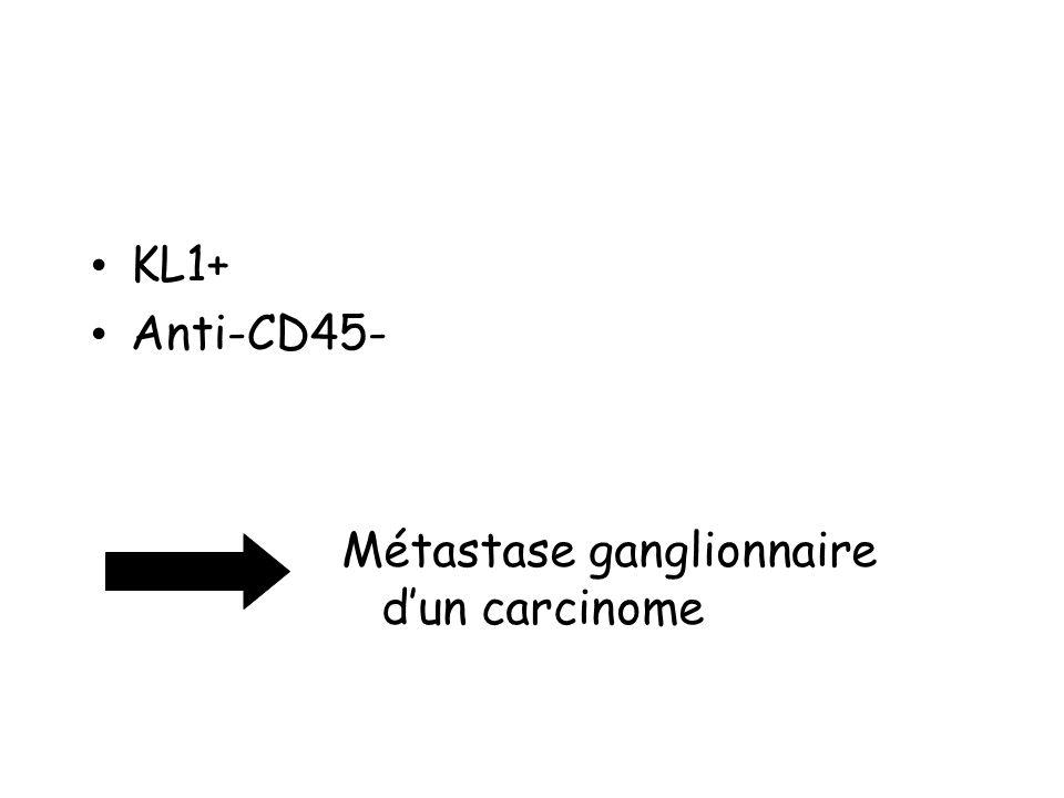 KL1+ Anti-CD45- Métastase ganglionnaire dun carcinome
