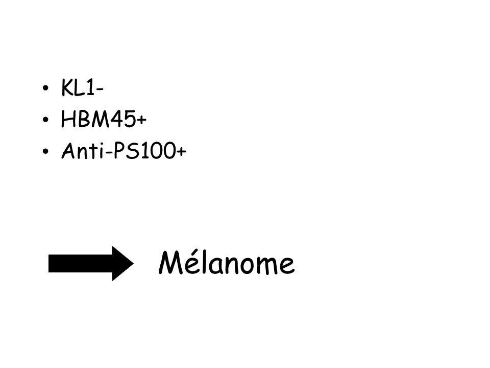KL1- HBM45+ Anti-PS100+ Mélanome