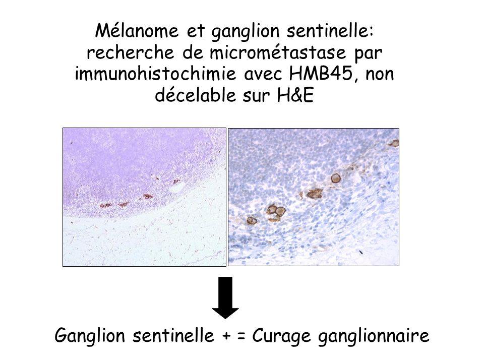 Mélanome et ganglion sentinelle: recherche de micrométastase par immunohistochimie avec HMB45, non décelable sur H&E Ganglion sentinelle + = Curage ga