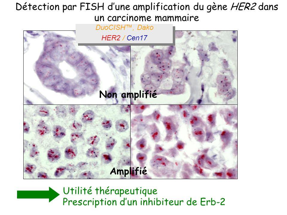 Détection par FISH dune amplification du gène HER2 dans un carcinome mammaire Utilité thérapeutique Prescription dun inhibiteur de Erb-2 Non amplifié