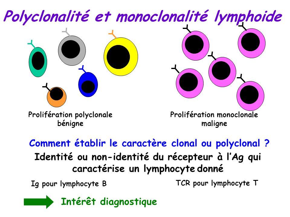 Polyclonalité et monoclonalité lymphoide Prolifération polyclonale bénigne Comment établir le caractère clonal ou polyclonal ? Identité ou non-identit