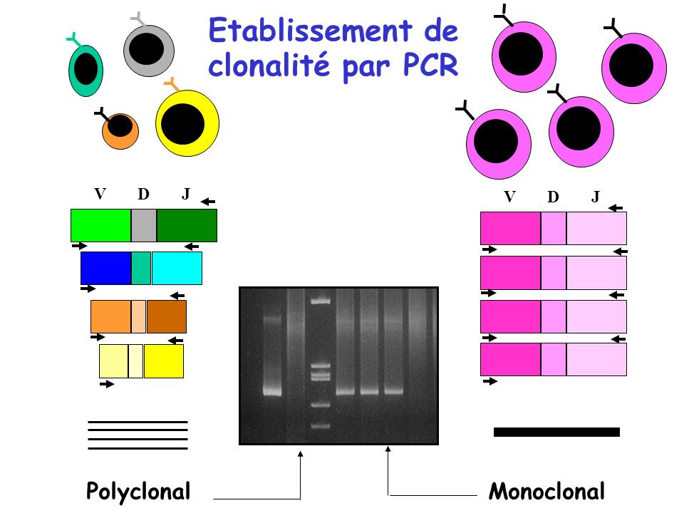 Polyclonal VDJ VDJ Monoclonal Etablissement de clonalité par PCR