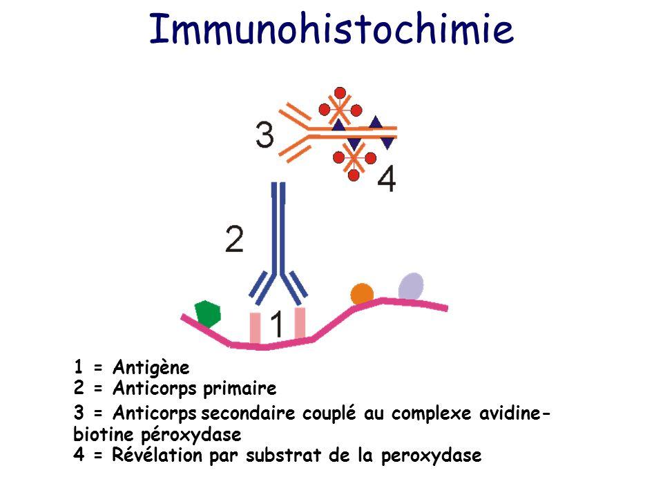 Immunohistochimie 1 = Antigène 2 = Anticorps primaire 3 = Anticorps secondaire couplé au complexe avidine- biotine péroxydase 4 = Révélation par subst