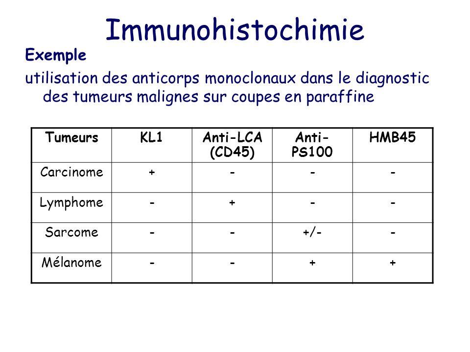 Immunohistochimie Exemple utilisation des anticorps monoclonaux dans le diagnostic des tumeurs malignes sur coupes en paraffine TumeursKL1Anti-LCA (CD