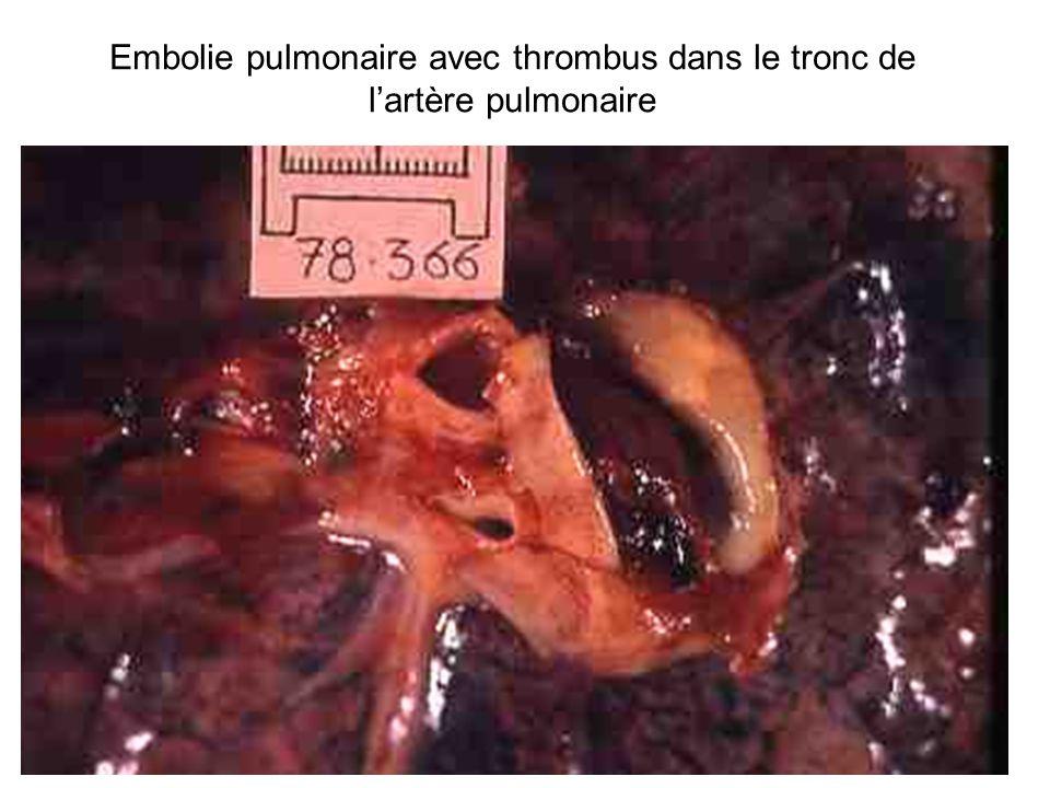 Embolie pulmonaire avec thrombus dans le tronc de lartère pulmonaire