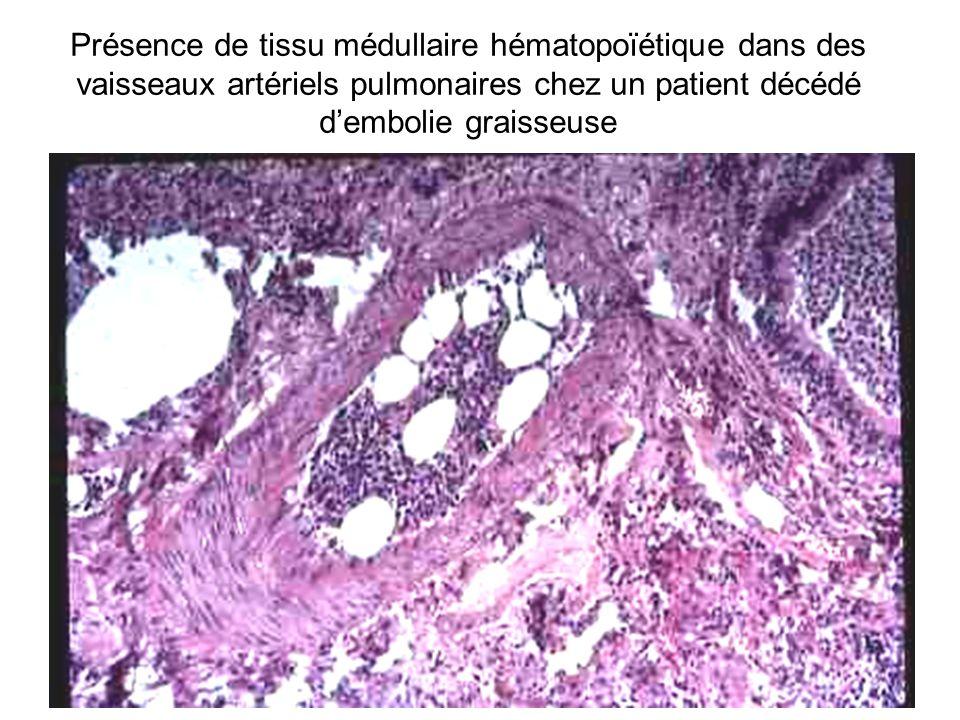 Présence de tissu médullaire hématopoïétique dans des vaisseaux artériels pulmonaires chez un patient décédé dembolie graisseuse