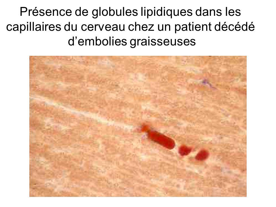 Présence de globules lipidiques dans les capillaires du cerveau chez un patient décédé dembolies graisseuses