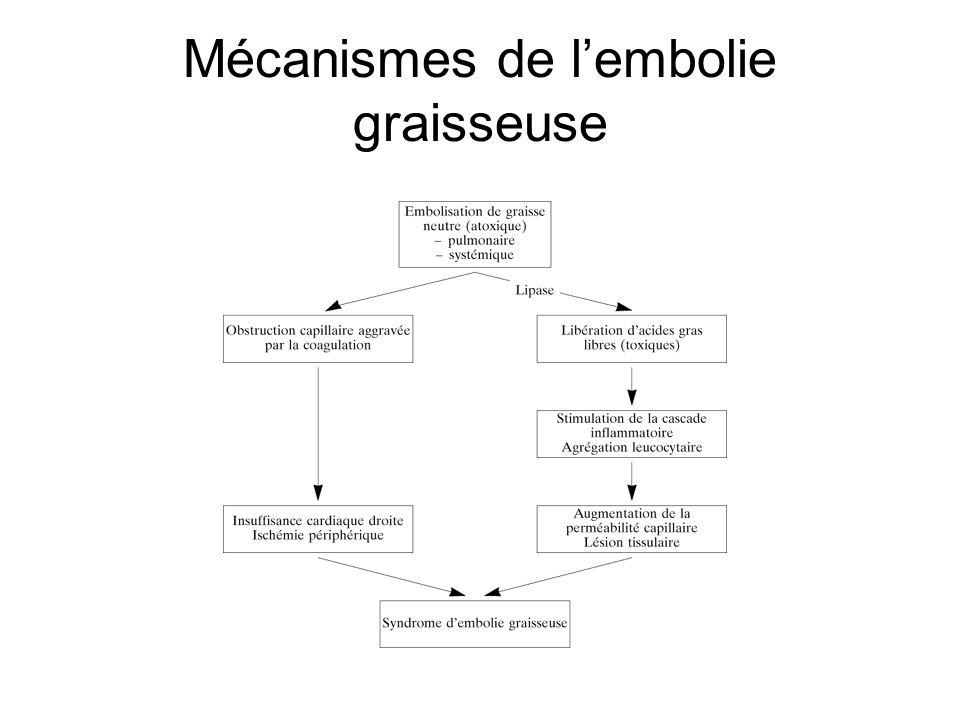 Mécanismes de lembolie graisseuse