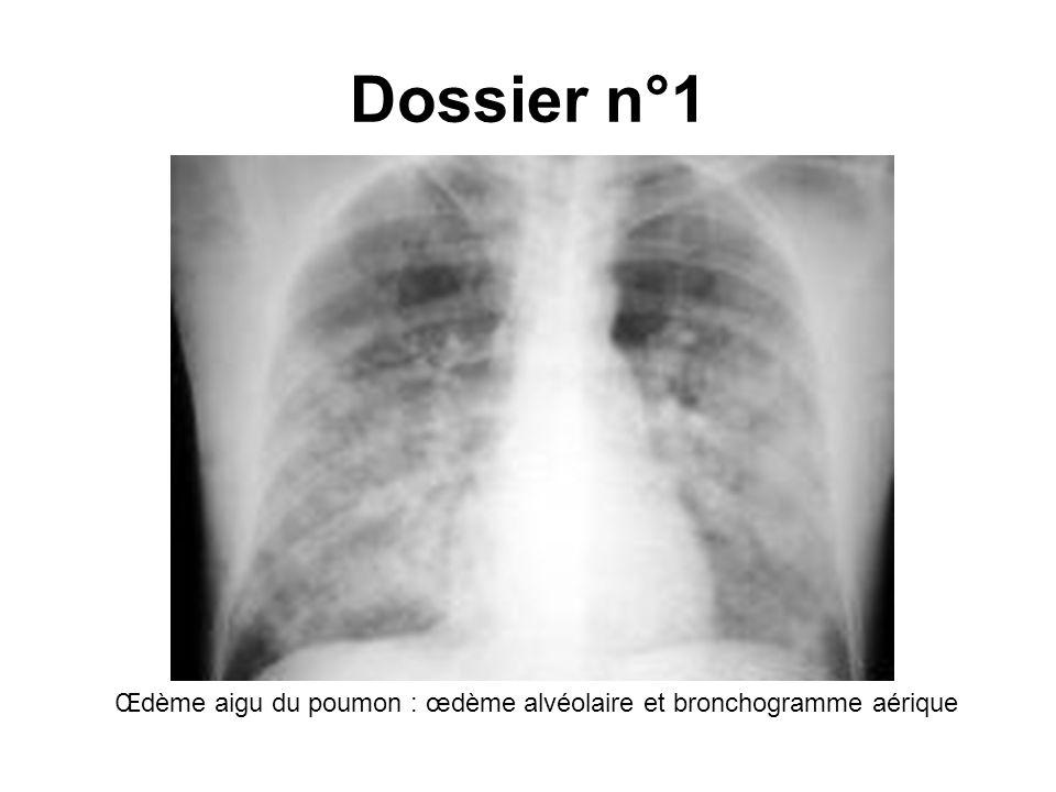 Infarctus rouge du poumon après embolie pulmonaire