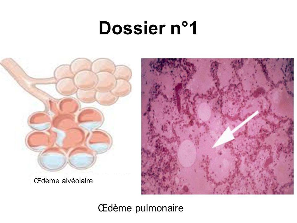 Dossier n°1 Œdème pulmonaire Œdème alvéolaire