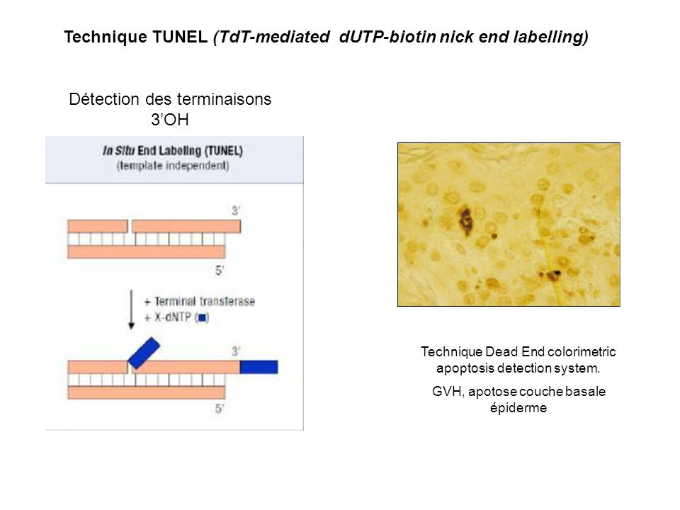 Détection des terminaisons 3OH Technique Dead End colorimetric apoptosis detection system. GVH, apotose couche basale épiderme Technique TUNEL (TdT-me