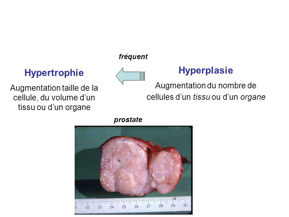 Hypertrophie Augmentation taille de la cellule, du volume dun tissu ou dun organe Hyperplasie Augmentation du nombre de cellules dun tissu ou dun organe fréquent
