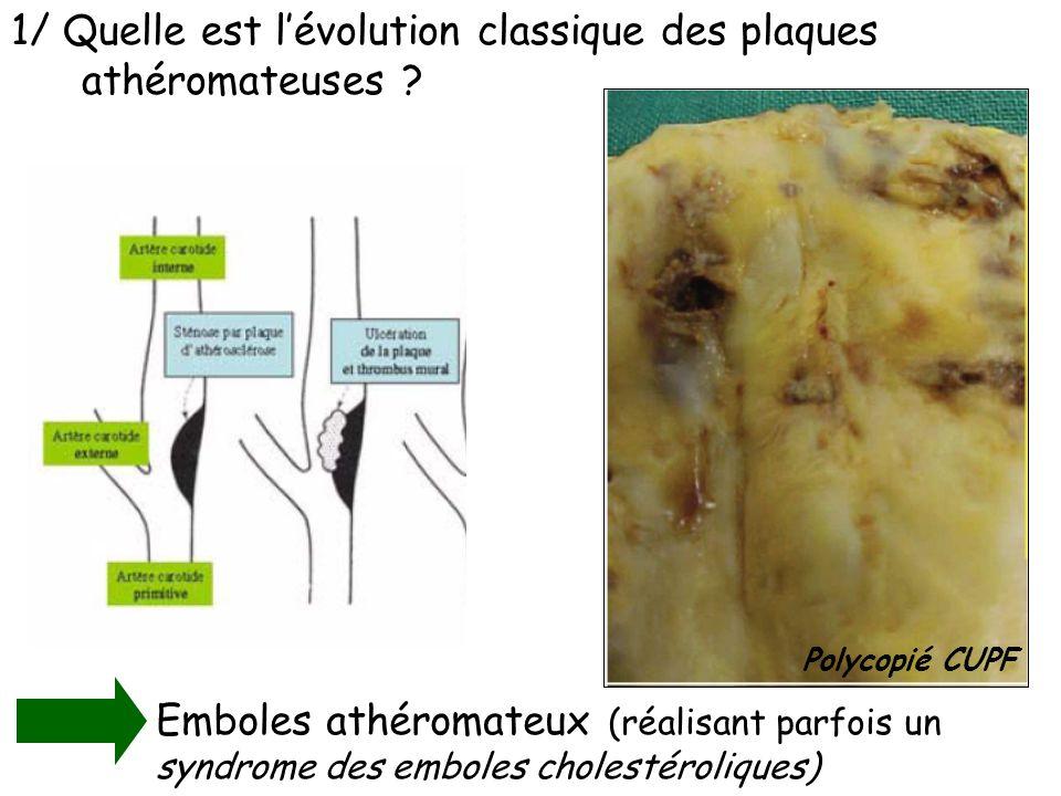 1/ Quelle est lévolution classique des plaques athéromateuses ? Emboles athéromateux (réalisant parfois un syndrome des emboles cholestéroliques) Poly