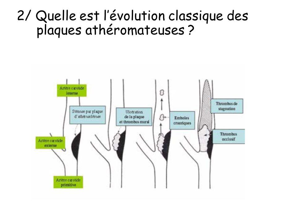 2/ Quelle est lévolution classique des plaques athéromateuses ?