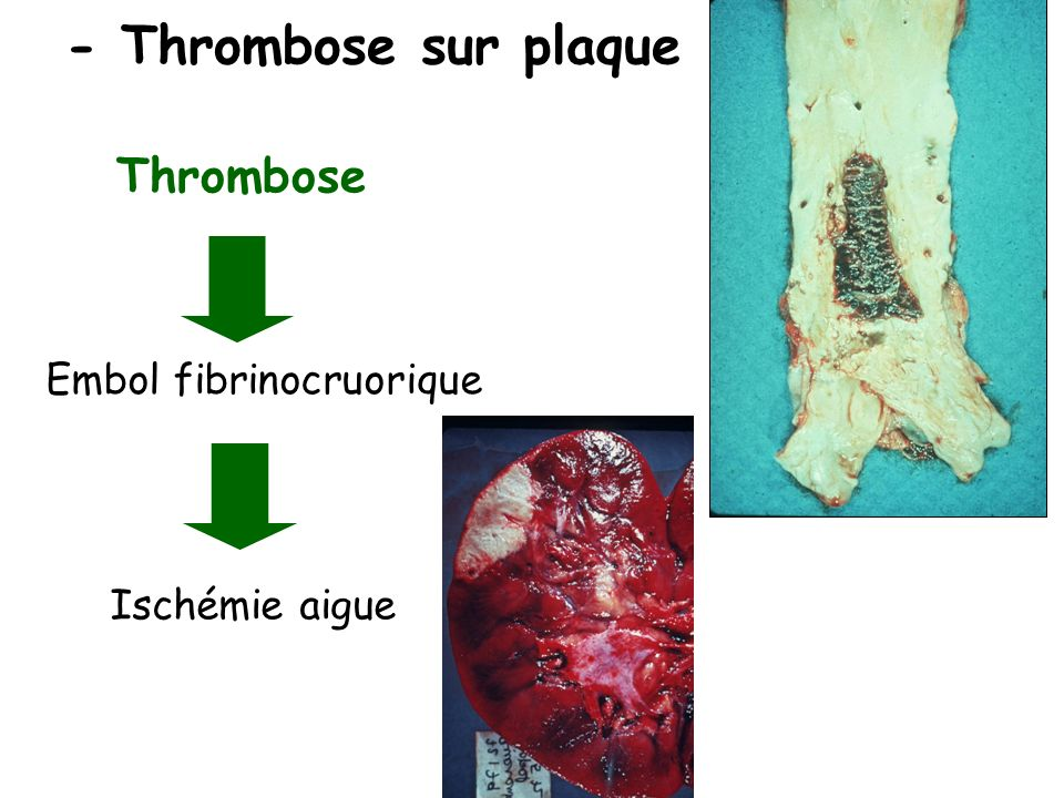 - Thrombose sur plaque Thrombose Embol fibrinocruorique Ischémie aigue