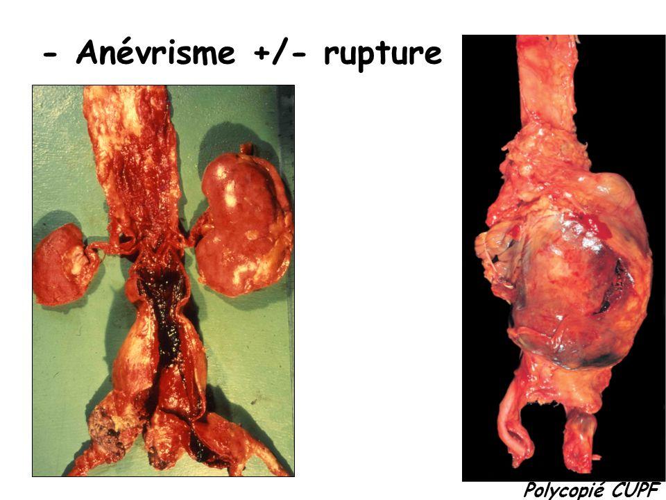 - Anévrisme +/- rupture Polycopié CUPF
