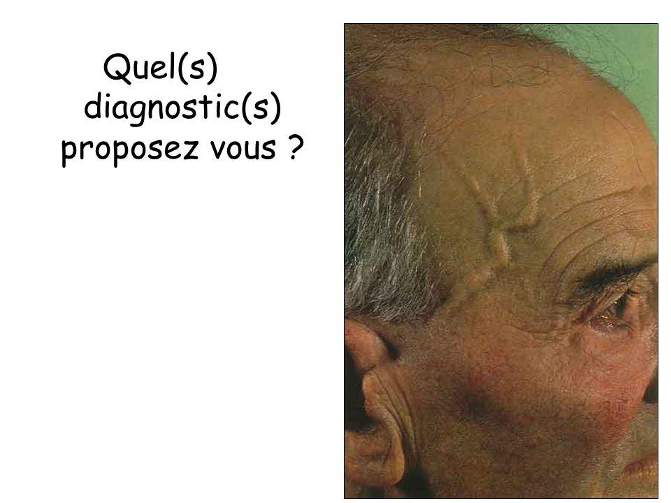 Quel(s) diagnostic(s) proposez vous ?