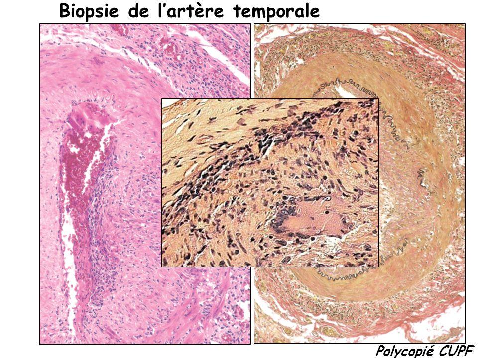 Polycopié CUPF Biopsie de lartère temporale