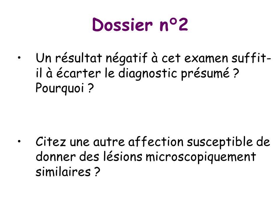 Dossier n°2 Un résultat négatif à cet examen suffit- il à écarter le diagnostic présumé ? Pourquoi ? Citez une autre affection susceptible de donner d