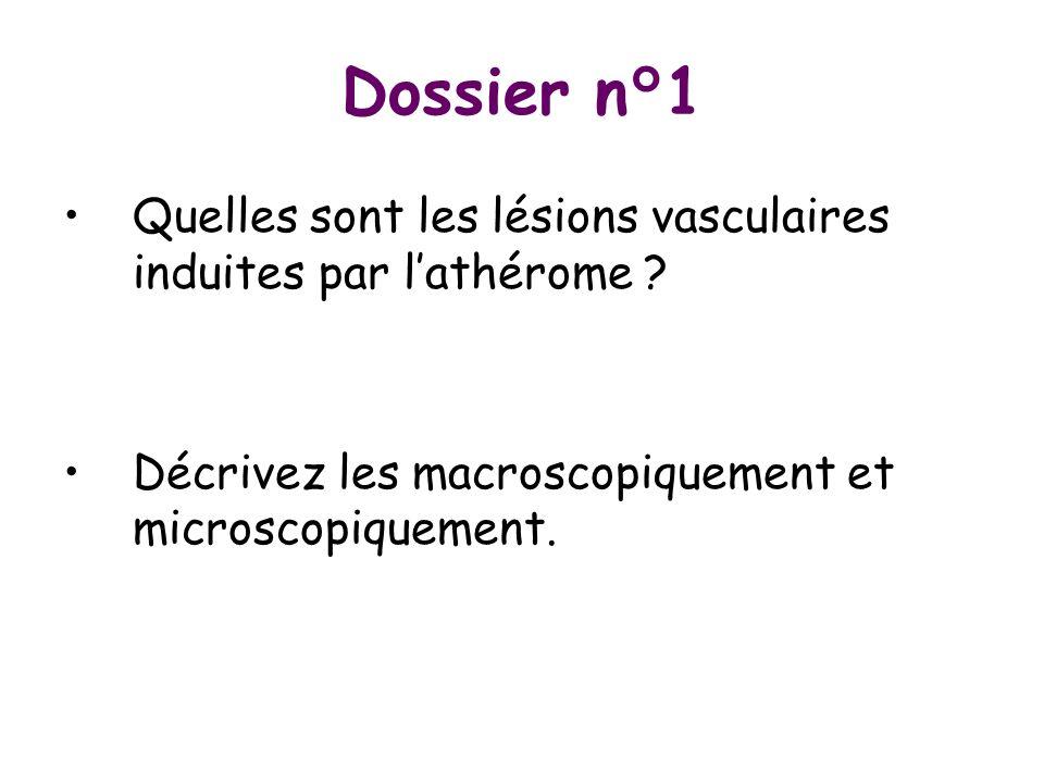 Dossier n°1 Quelles sont les lésions vasculaires induites par lathérome ? Décrivez les macroscopiquement et microscopiquement.