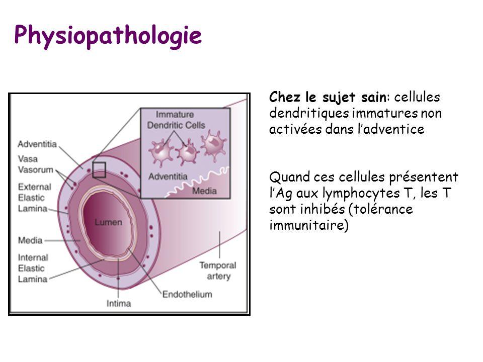 Chez le sujet sain: cellules dendritiques immatures non activées dans ladventice Quand ces cellules présentent lAg aux lymphocytes T, les T sont inhib