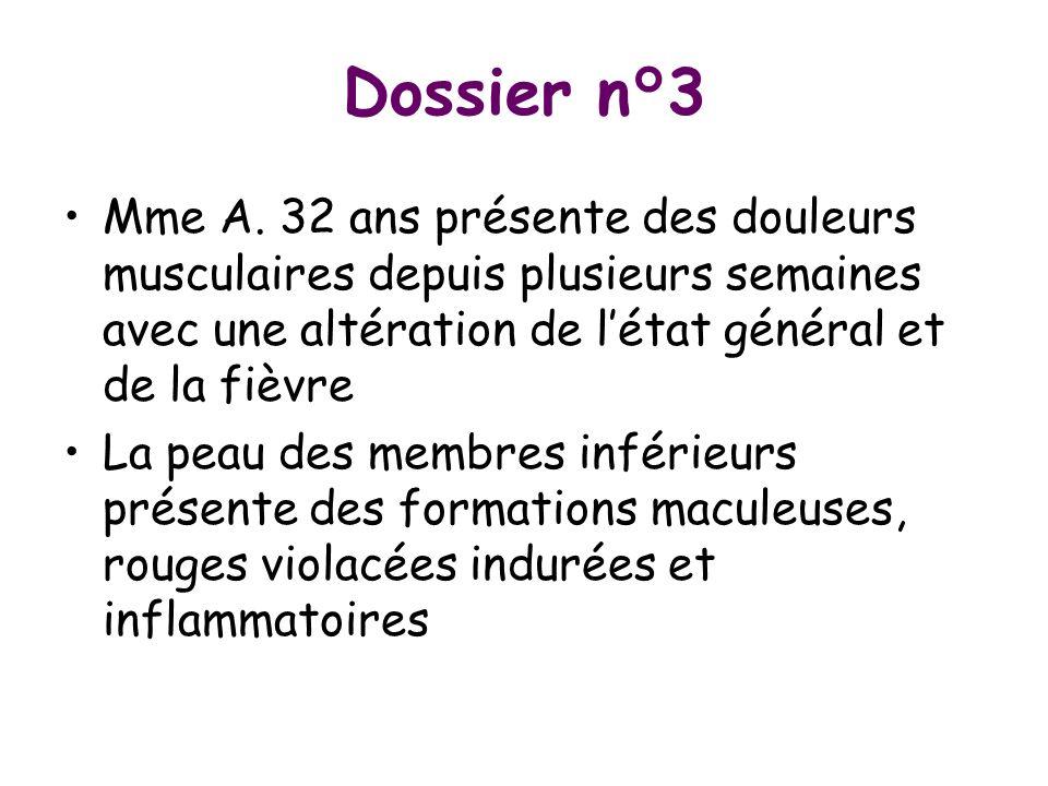 Dossier n°3 Mme A. 32 ans présente des douleurs musculaires depuis plusieurs semaines avec une altération de létat général et de la fièvre La peau des