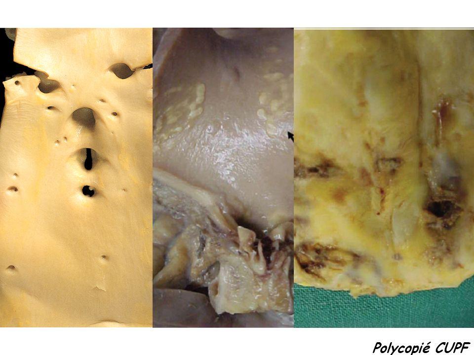 Wegener = Granulomatose avec polyangéite (GPA) Churg et Strauss = GPA et éosinophilie Polyangéite microscopique Atteinte ORL Atteinte pulmonaire Atteinte rénale c-ANCA (Pr 3) Vascularite nécrosante + granulomes Asthme Hyper-éosinophilie p-ANCA (MPO) Vascularite nécrosante + granulomes + PNE Atteinte pulmonaire Atteinte rénale p-ANCA (MPO) Vascularite nécrosante sans granulome 1/ Vascularites associées aux anticorps anti- cytoplasme des polynucléaires neutrophiles (ANCA) Vascularites touchant les petits vaisseaux
