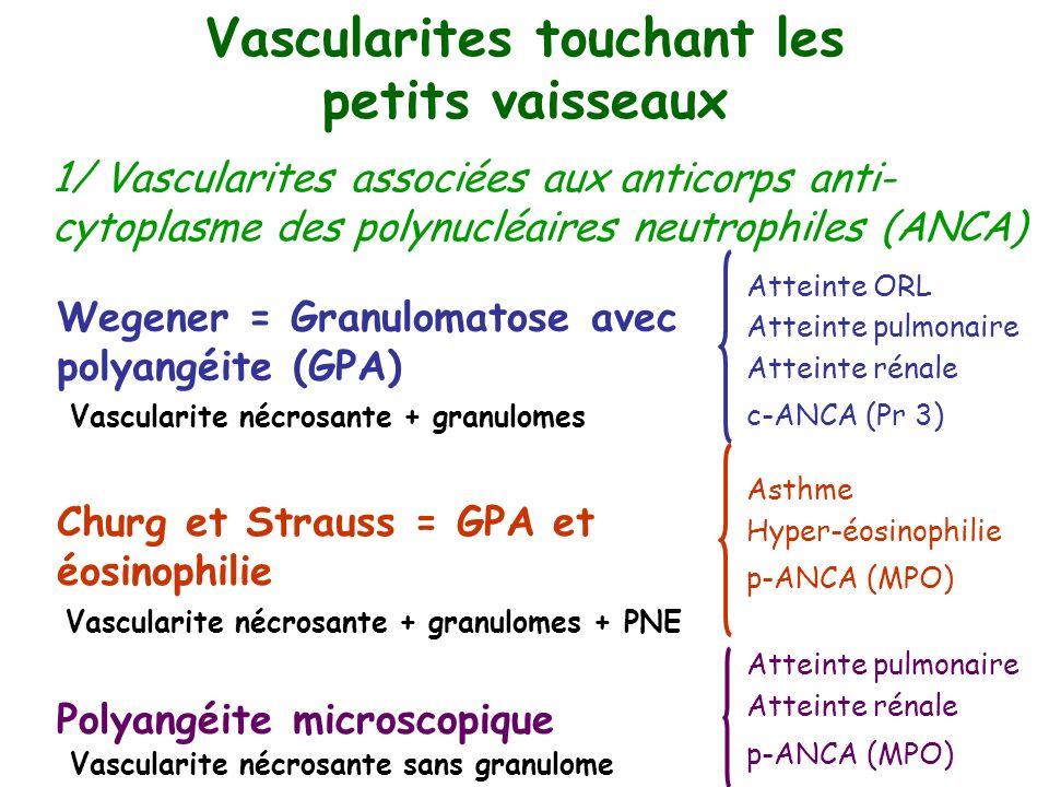 Wegener = Granulomatose avec polyangéite (GPA) Churg et Strauss = GPA et éosinophilie Polyangéite microscopique Atteinte ORL Atteinte pulmonaire Attei