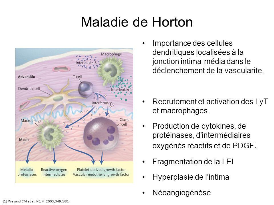 Maladie de Horton Importance des cellules dendritiques localisées à la jonction intima-média dans le déclenchement de la vascularite. Recrutement et a