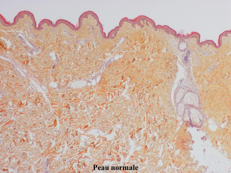 Ecole des savoirs et des métiers en cancérologie Peau normale