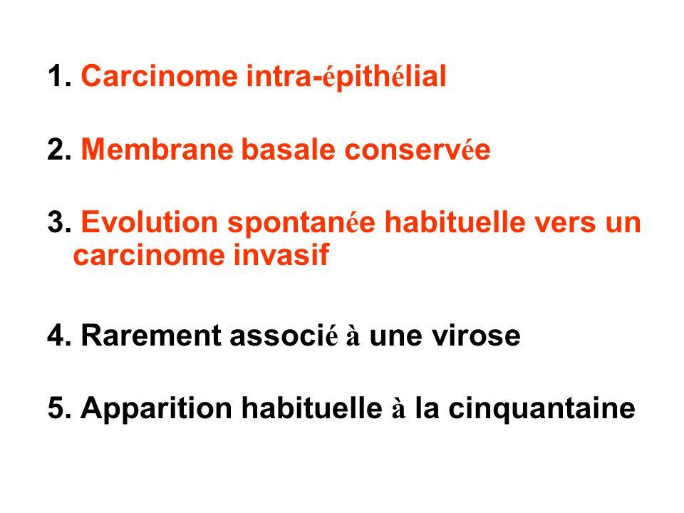 1. Carcinome intra- é pith é lial 2. Membrane basale conserv é e 3. Evolution spontan é e habituelle vers un carcinome invasif 4. Rarement associ é à