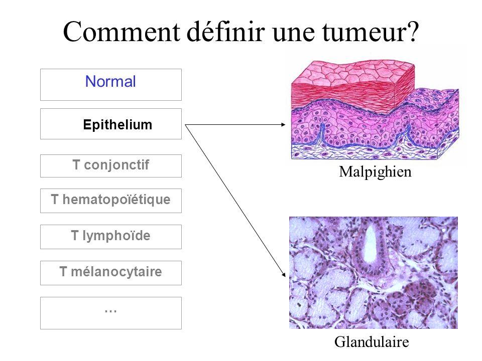 Comment définir une tumeur? Normal Epithelium T conjonctif T hematopoïétique T lymphoïde T mélanocytaire … Malpighien Glandulaire