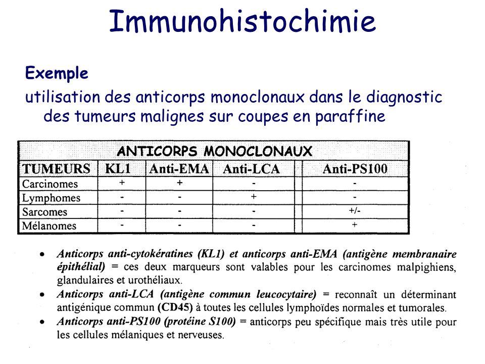 Immunohistochimie Exemple utilisation des anticorps monoclonaux dans le diagnostic des tumeurs malignes sur coupes en paraffine