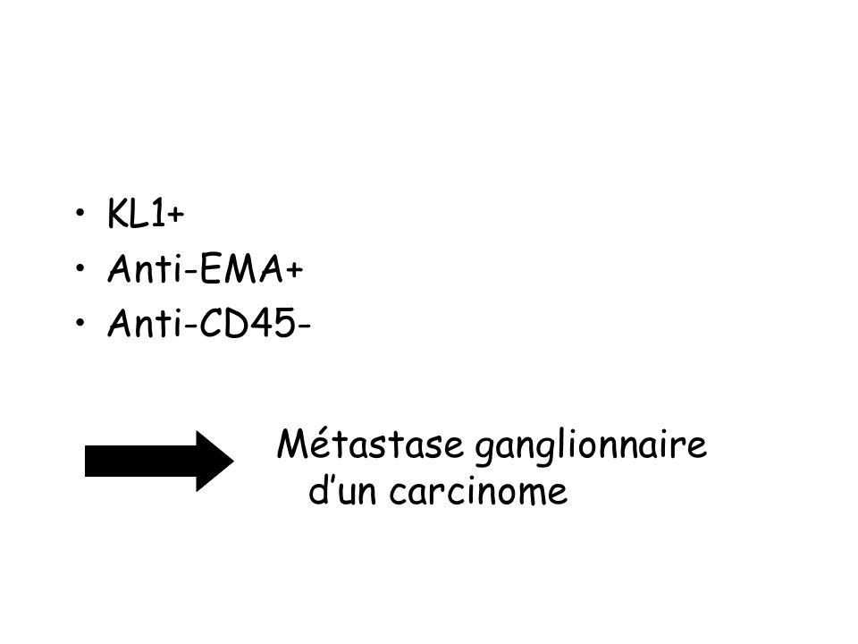 KL1+ Anti-EMA+ Anti-CD45- Métastase ganglionnaire dun carcinome
