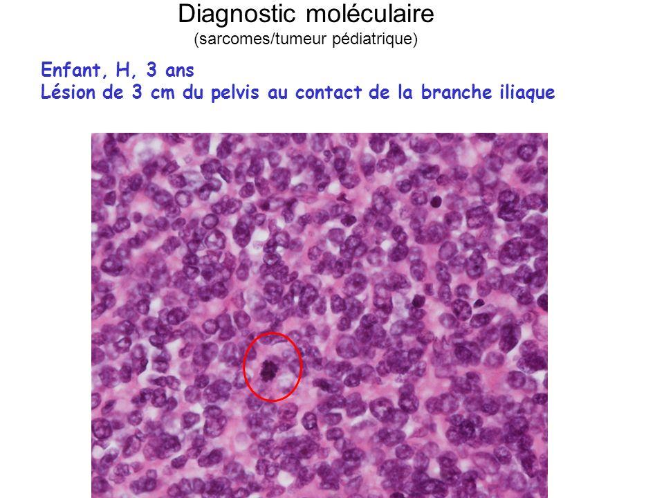 Diagnostic moléculaire (sarcomes/tumeur pédiatrique) Enfant, H, 3 ans Lésion de 3 cm du pelvis au contact de la branche iliaque
