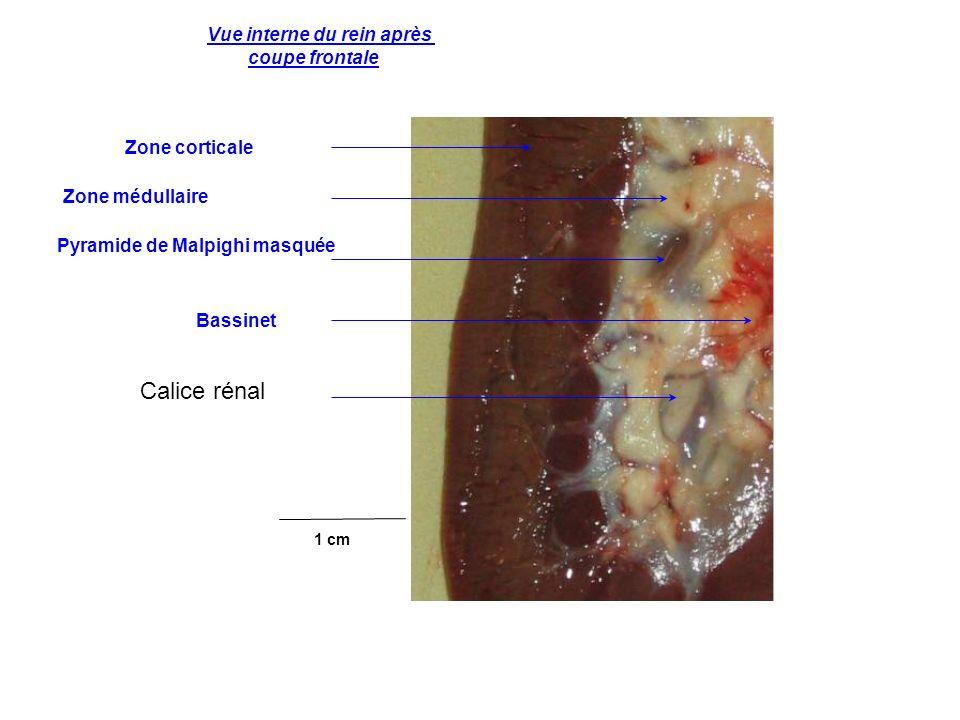 Vue interne du rein après coupe frontale Zone corticale Zone médullaire Pyramide de Malpighi masquée Bassinet 1 cm Calice rénal
