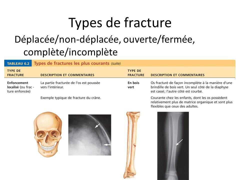 Types de fracture Déplacée/non-déplacée, ouverte/fermée, complète/incomplète