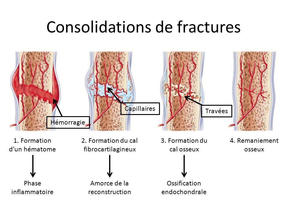 Consolidations de fractures 4. Remaniement osseux 1. Formation d'un hématome 2. Formation du cal fibrocartilagineux 3. Formation du cal osseux Hémorra